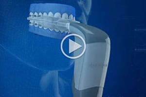 Acceledent Video Dovorany Orthodontics Wausau Wittenberg WI